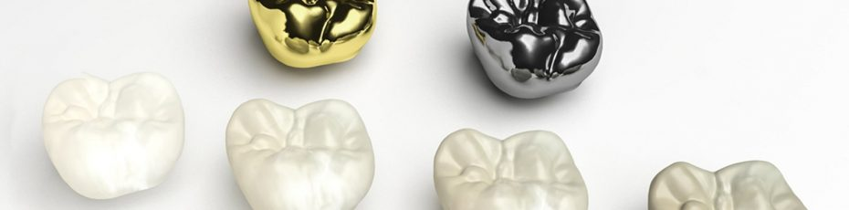 are-same-day-crowns-better-than-traditional-crowns